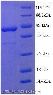 葡萄糖激酶(GCK)单克隆抗体