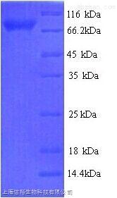基质金属蛋白酶2(MMP2)单克隆抗体