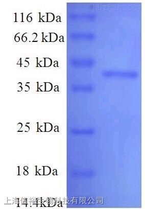 沉默调节蛋白2(SIRT2)单克隆抗体