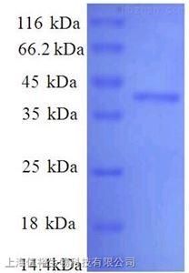 白介素18受体辅助蛋白(IL18RAP)单克隆抗体
