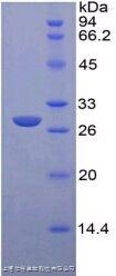 含Rho关联卷曲螺旋蛋白激酶2(Rock2)单克隆抗体