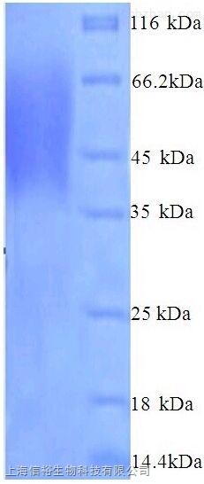 唾液酸结合Ig样凝集素1(SIGLEC1)单克隆抗体