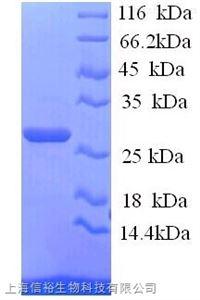 B-细胞淋巴瘤因子2(Bcl2)单克隆抗体