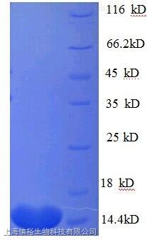 组蛋白脱乙酰基酶2(HDAC2)单克隆抗体