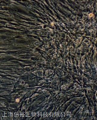QBC939 细胞;人胆管癌细胞