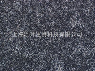 大鼠骨髓基质细胞