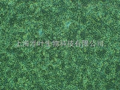 大鼠淋巴成纤维细胞