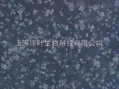 大鼠Ⅱ型肺泡上皮细胞