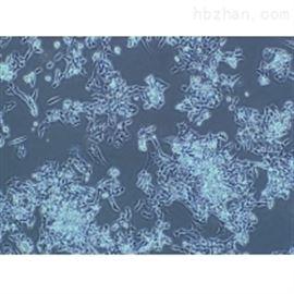人原代肺微血管內皮細胞